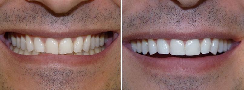 Un caso di sbiancamento dei denti