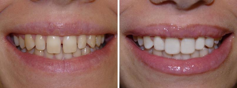 Sbiancamento denti gialli